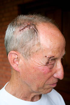 The gash on William's head sustained in the rock-fall accident