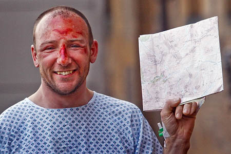 Adam Potter recuperating in hospital. Photo: PA
